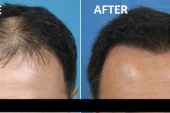 Stem Cell Hair Therapy In Mumbai