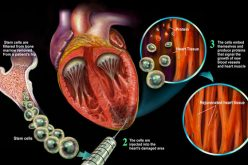 Stem Cell Therapy Congestive Heart Failure