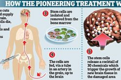 Stem Cell Therapy Stroke Victims