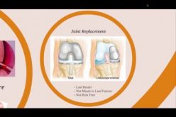 Stem Cell Therapy for Cartilage Defects (844) GET-STEM